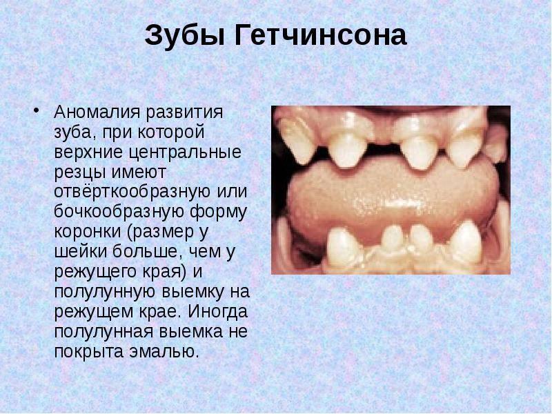 Что такое гипоплазия эмали зубов у детей и как ее лечить?