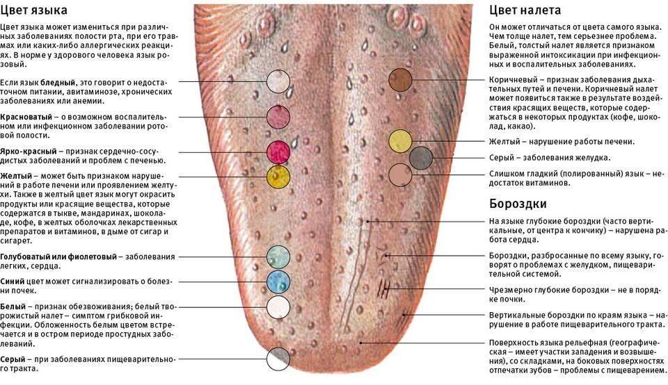 Диагностика болезней по языку: по форме, плотности, налету, сосочкам с фото и видео