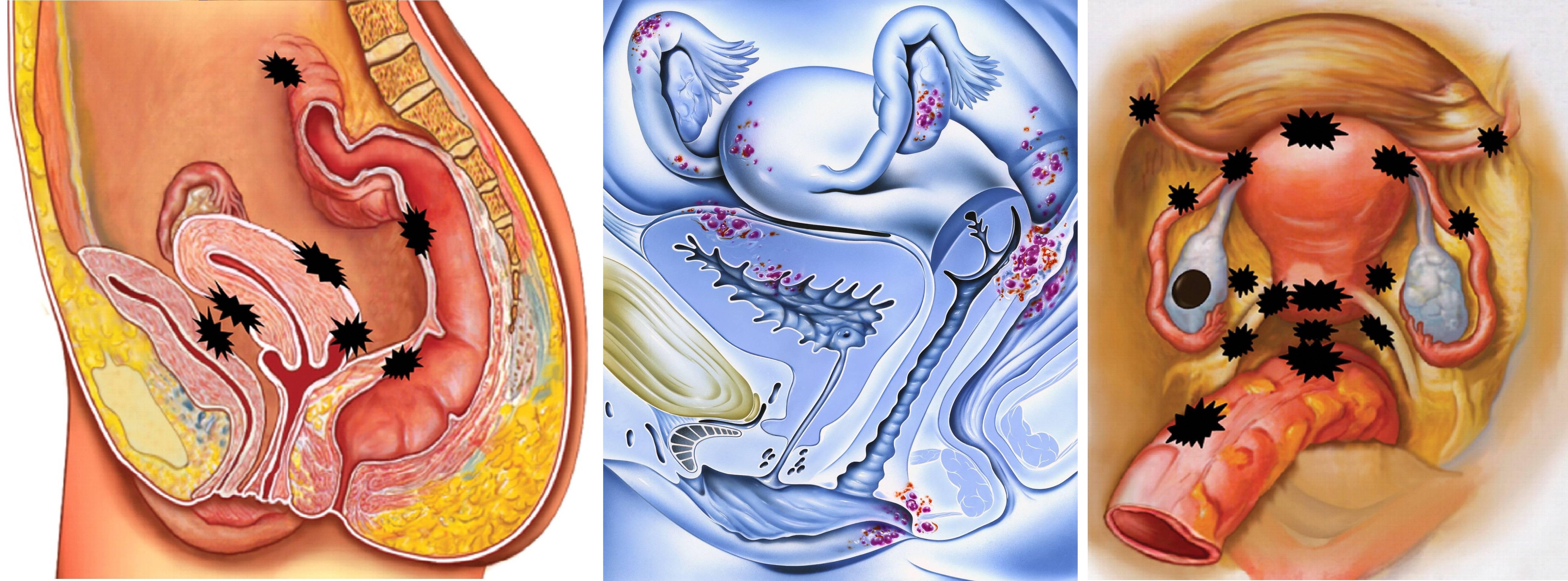 Как определить и вылечить дисфункцию яичников, чтобы забеременеть