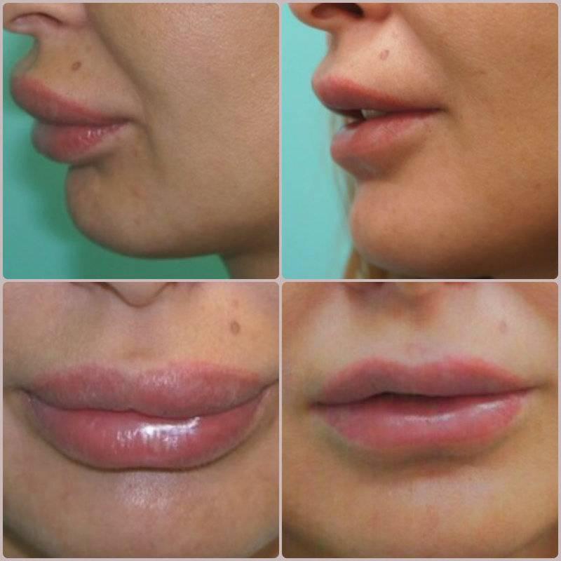 Как увеличить губы в домашних условиях — самые популярные методы