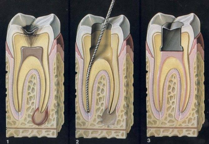 Как быстро снять острую зубную боль в домашних условиях