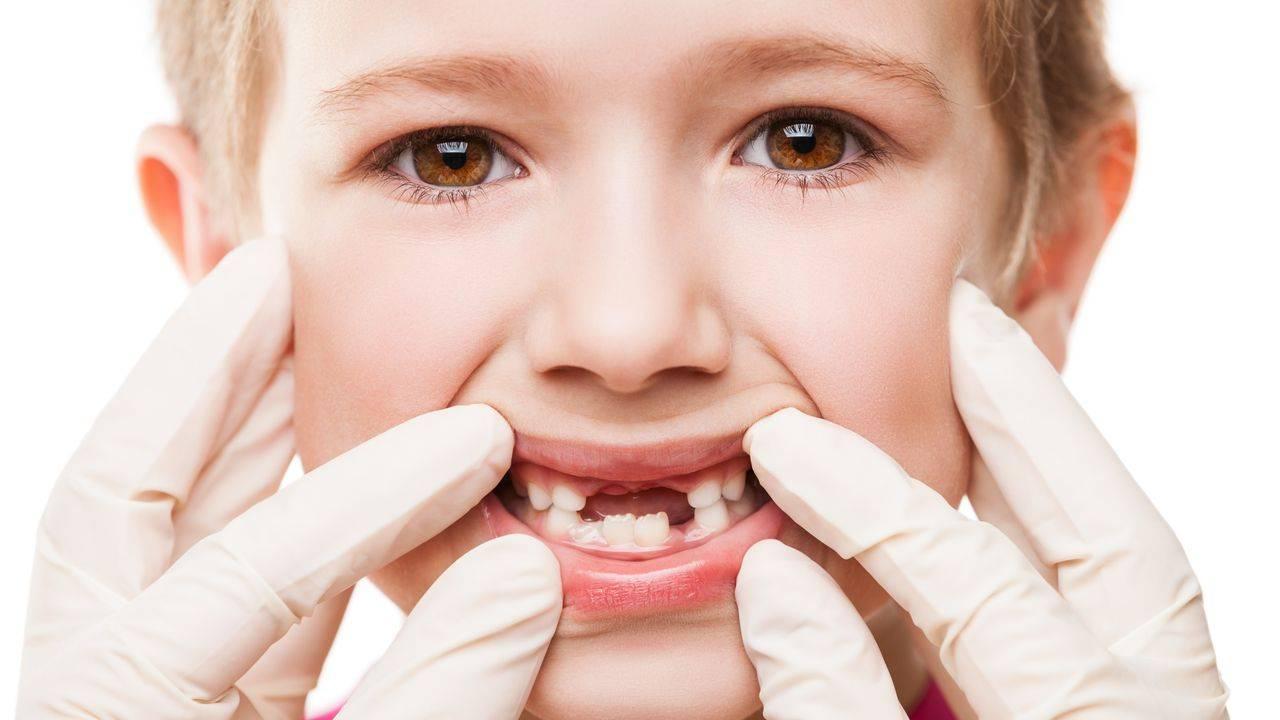 Гингивит у детей: лечение, симптомы