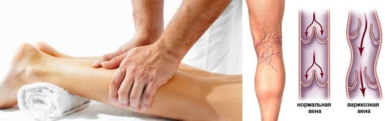 Эффективное лечение отеков ног при варикозе