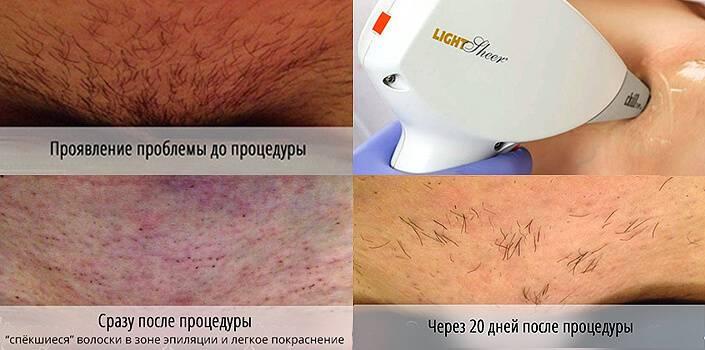 Что лучше: фотоэпиляция или лазерная эпиляция?