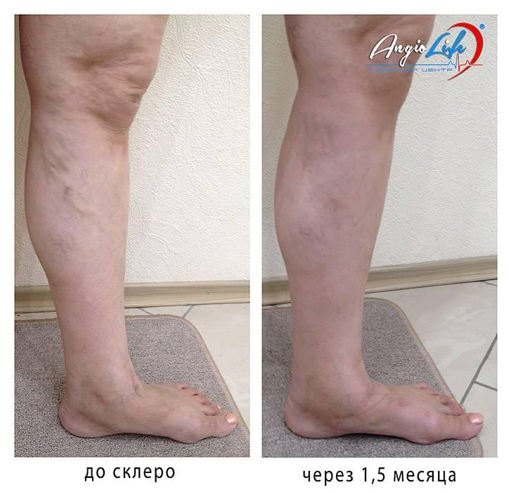 В каких случаях проводится склеротерапия вен нижних конечностей?