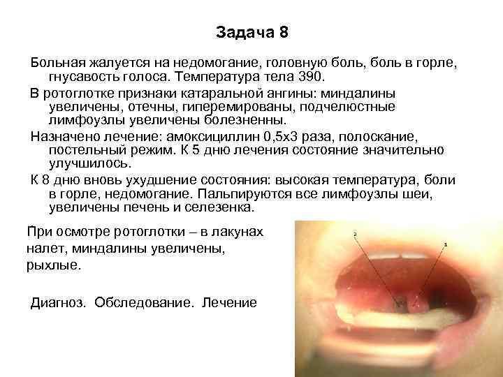 Температура при зубной боли