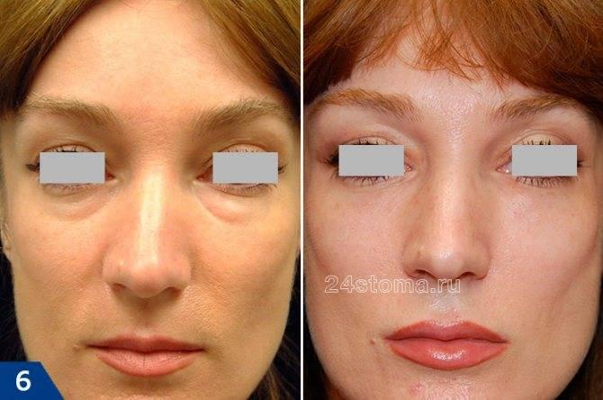 Контурная пластика носослезной борозды. фото до и после, осложнения, отзывы