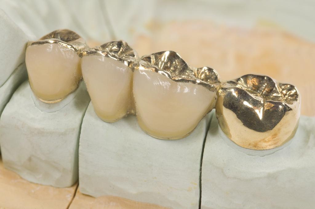 Зубные коронки - виды, изготовление и установка