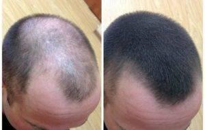 Витамины от выпадения волос при климаксе