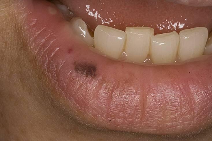 Черные губы: появление темных пятен — косметический дефект или заболевание