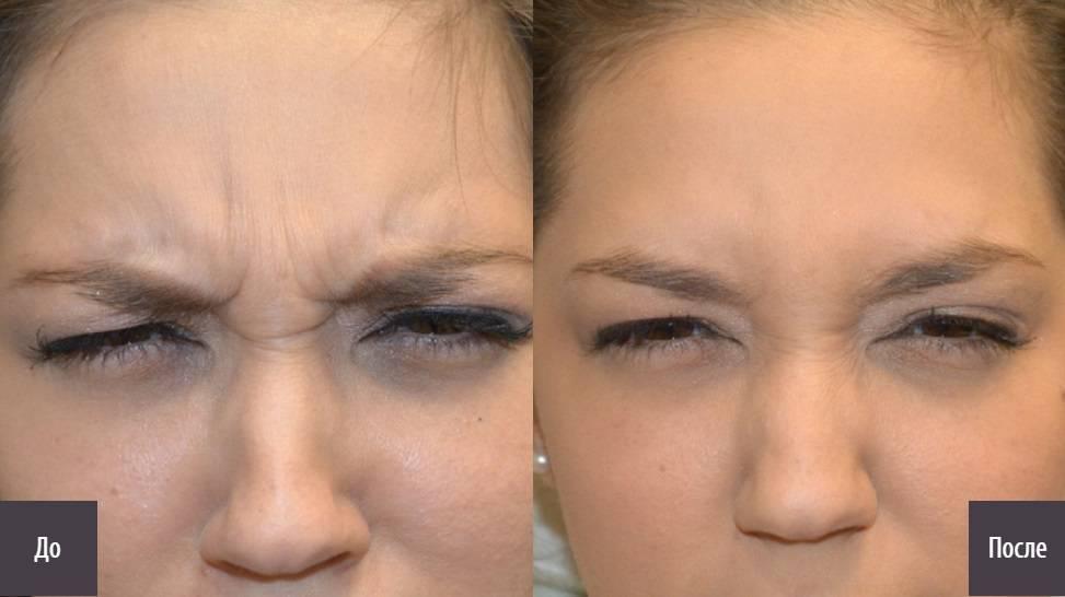 Инъекции ботокса — оружие против мимических морщин вокруг глаз