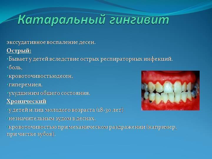 Причины возникновения, симптомы и лечение острого и хронического катарального гингивита