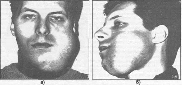 Рак верхней челюсти – симптомы, лечение, клиническая картина
