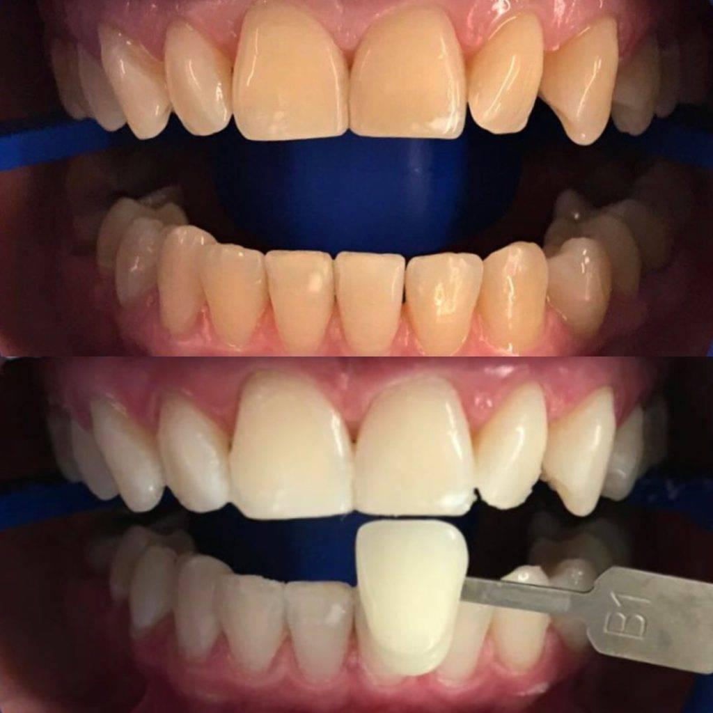Что такое отбеливание zoom 3, сколько держится эффект от процедуры: реальные фото зубов до и после