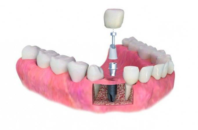 12 часто возникающих вопросов об имплантации зубов