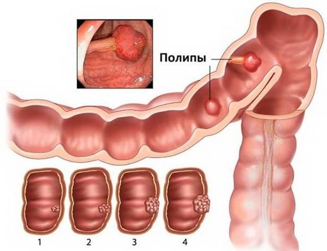 10 причин образования полипов в кишечнике и профилактика полипозных новообразований
