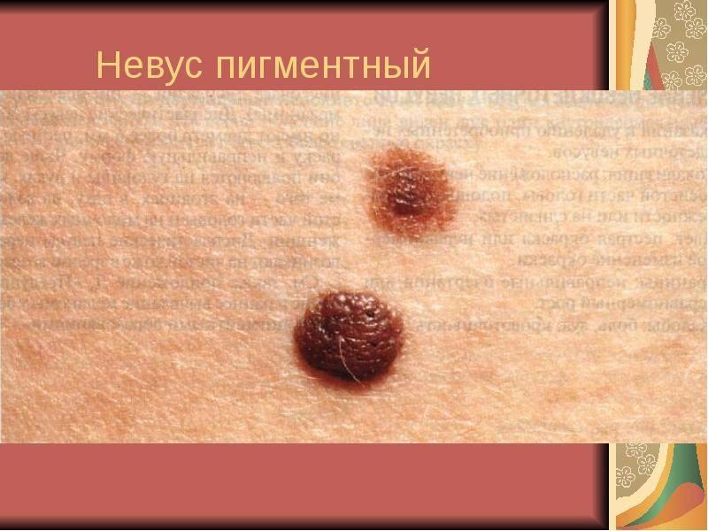 Виды новообразований на коже человека: фото и описание