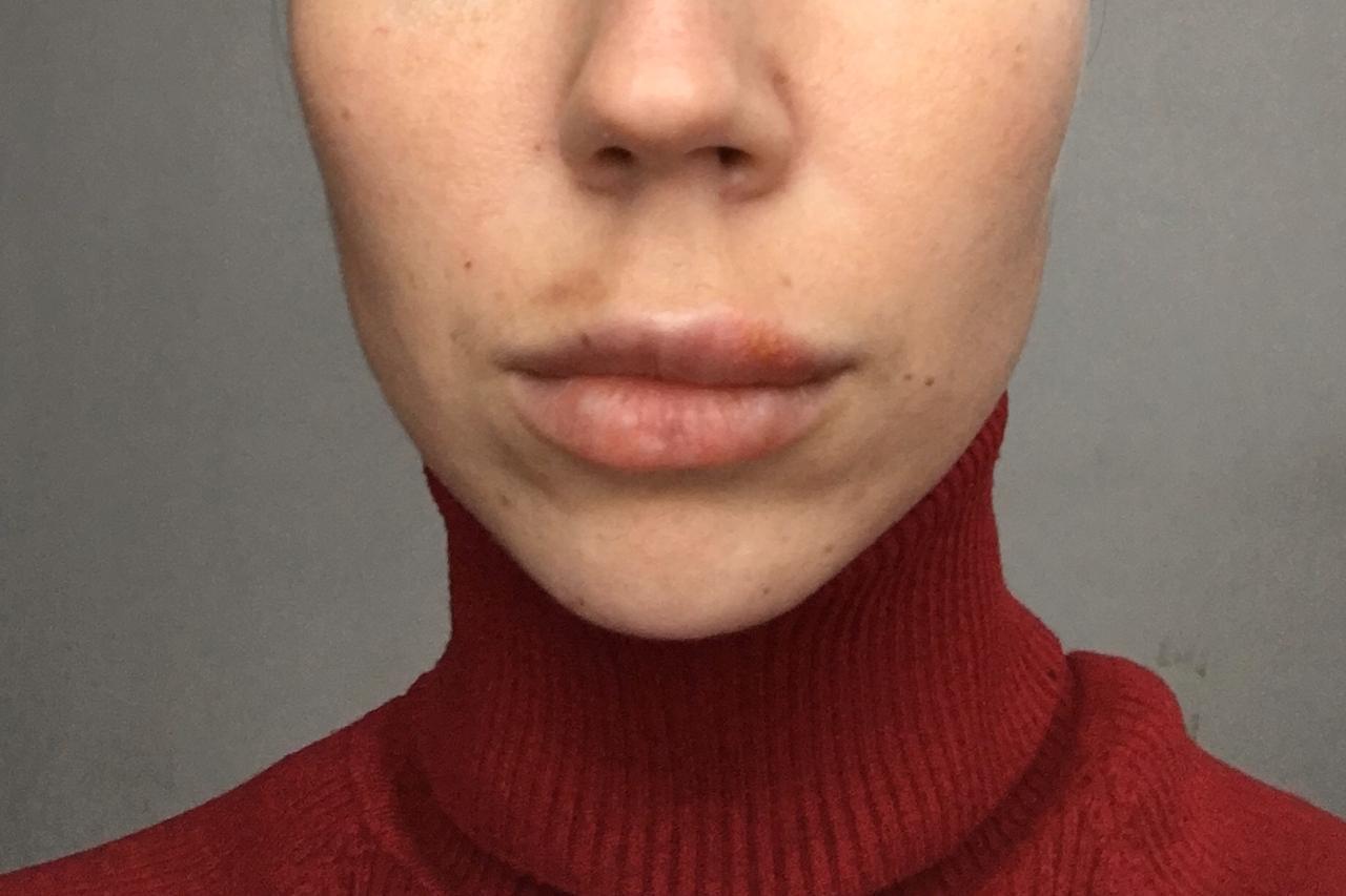 Что делать, если после увеличения губ гиалуроновой кислотой появились шарики?