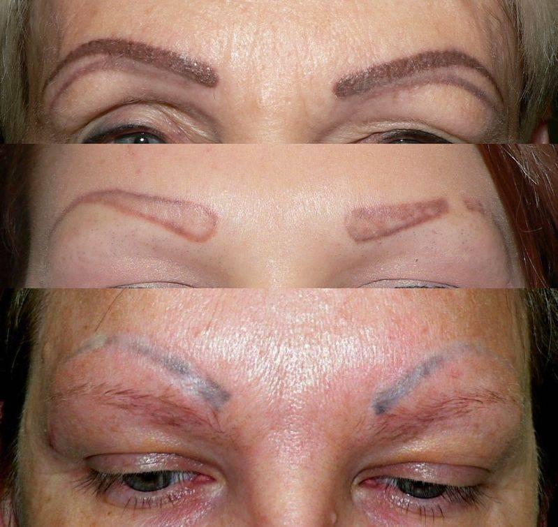 Опасен ли татуаж бровей для здоровья: в каких случаях нельзя проводить процедуру