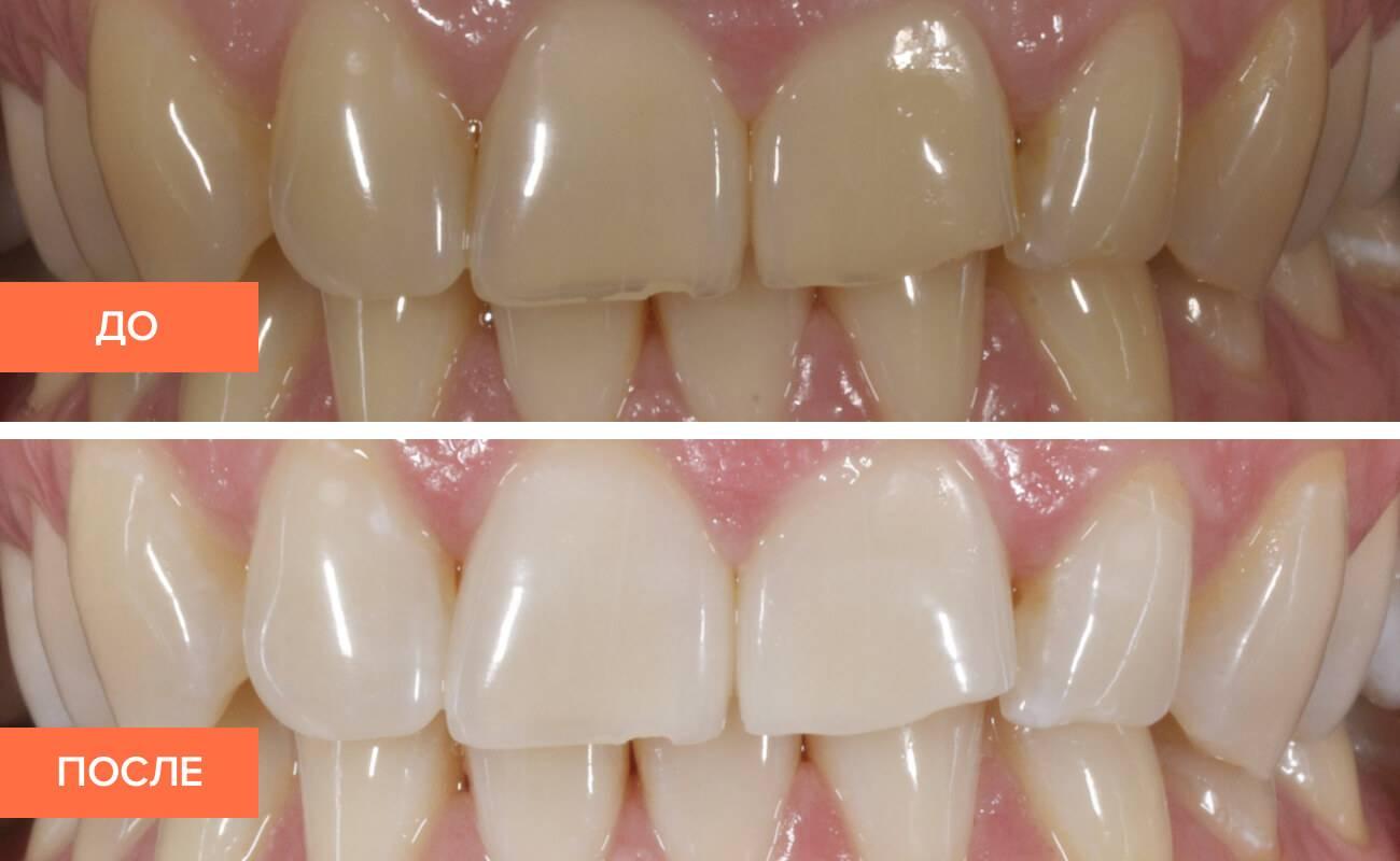 Можно ли делать чистку зубов при кариесе