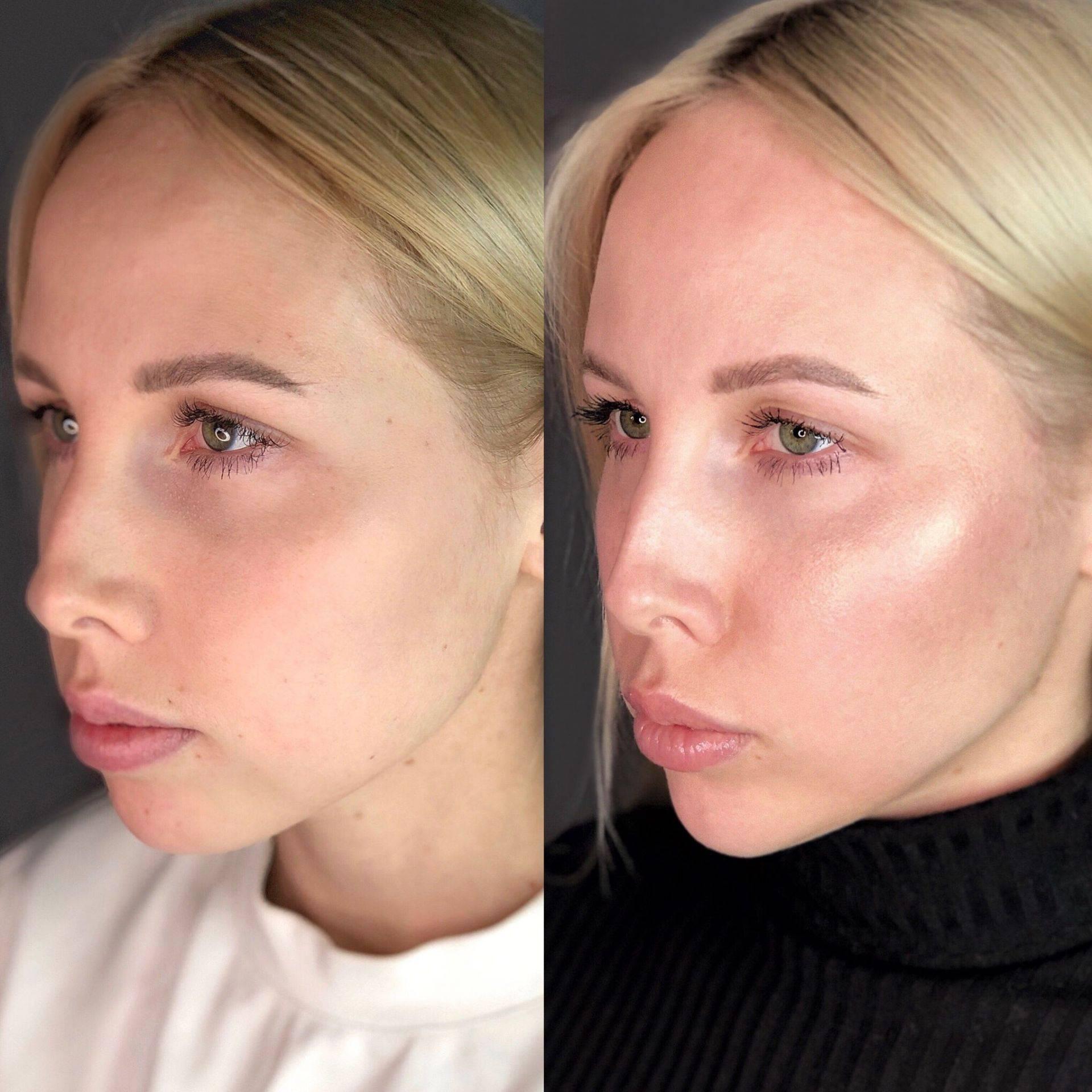 Какие бывают формы скул, примеры на фото. как сделать выраженными скулы при помощи макияжа.
