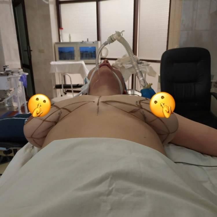 Якорная мастопексия: особенности процедуры и показания к ней