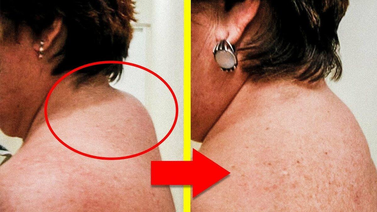 У ребенка растет горб на шее лечение. как избавиться от горбика на шее