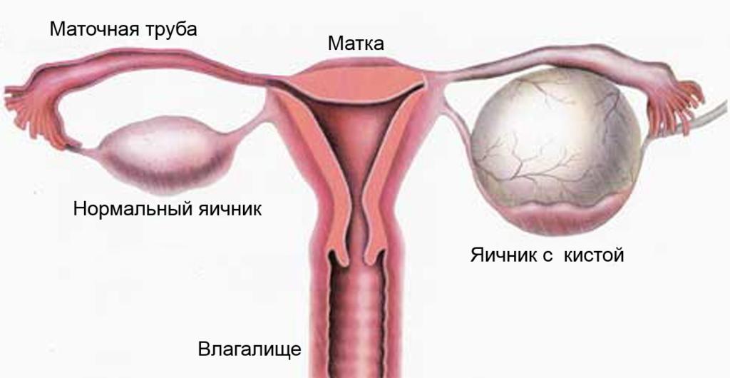 Ретенционные кисты яичника: причины, симптомы в постменопаузе