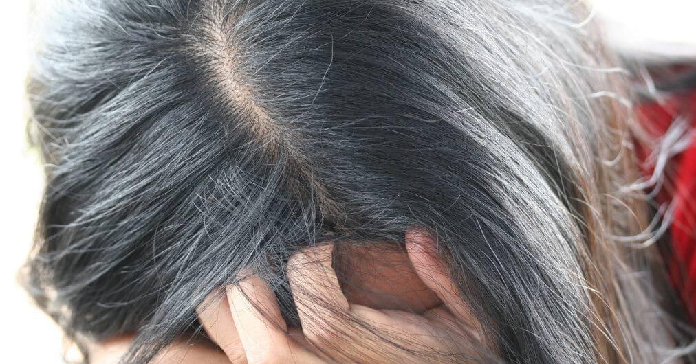Основные причины появления седых волос у женщин