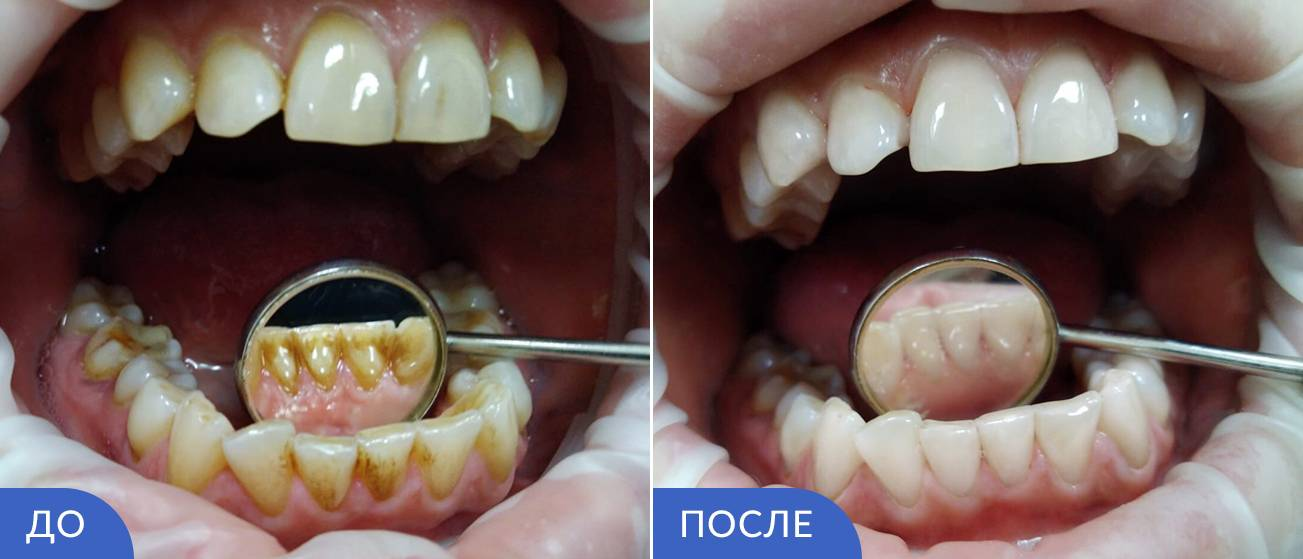 Особенности пескоструйной чистки зубов. показания и противопоказания к процедуре
