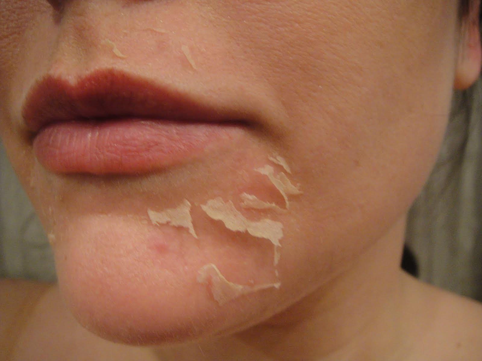 Кожа на лице шелушится после умывания