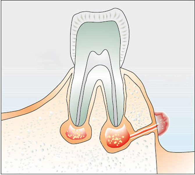 Дырка в десне около зуба фото