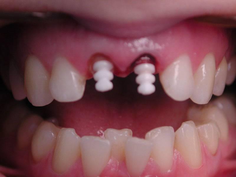 Сколько будет стоить нарастить зуб?