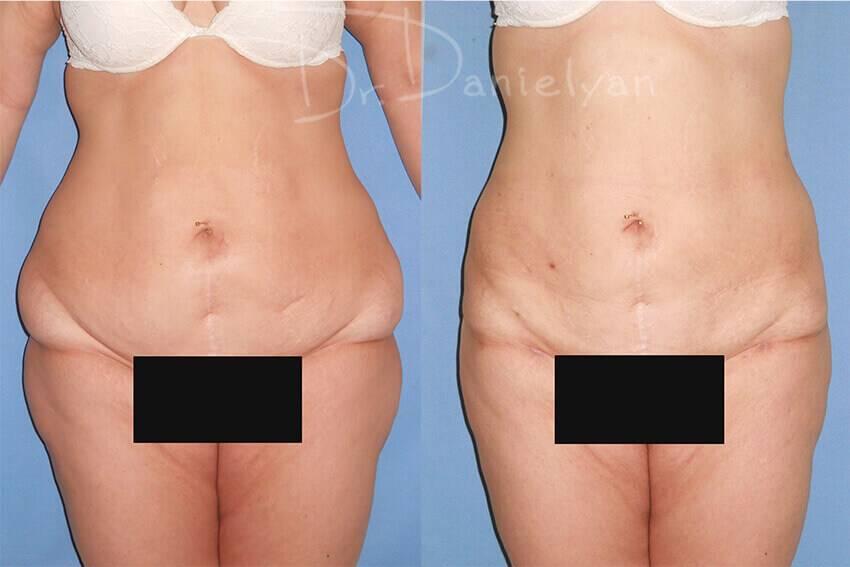 Липолитики для похудения - что это такое?