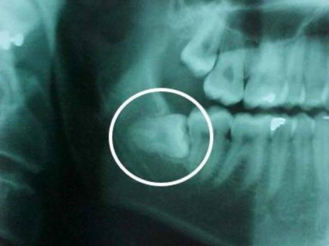 Падаете в обморок после укола у стоматолога? 5 настоящих причин