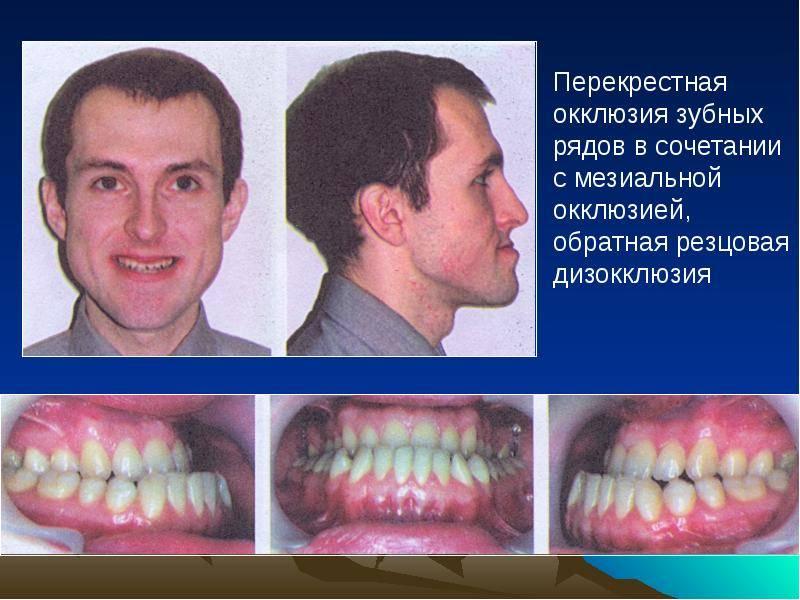 Гиперестезия зубов - симптомы и лечение
