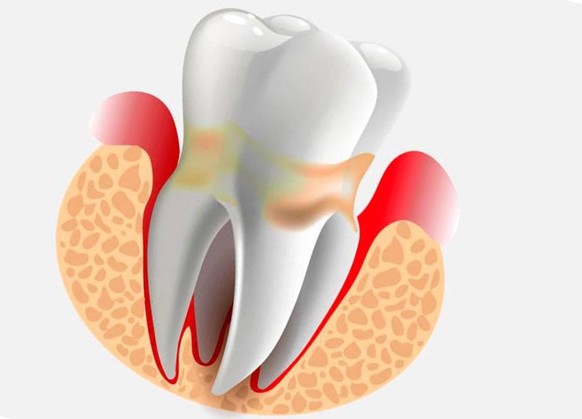 Здоровые зубы - залог отличного самочувствия! кариес запущенный: его последствия и лечение