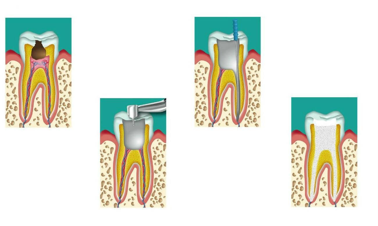 Современное эндодонтическое лечение каналов зубов