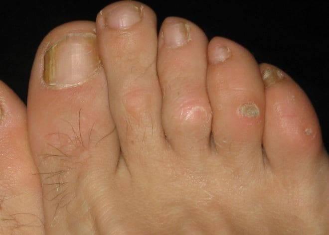 Причины и симптомы появления стержневой мозоли на ногах, руках? как удалить нарост?
