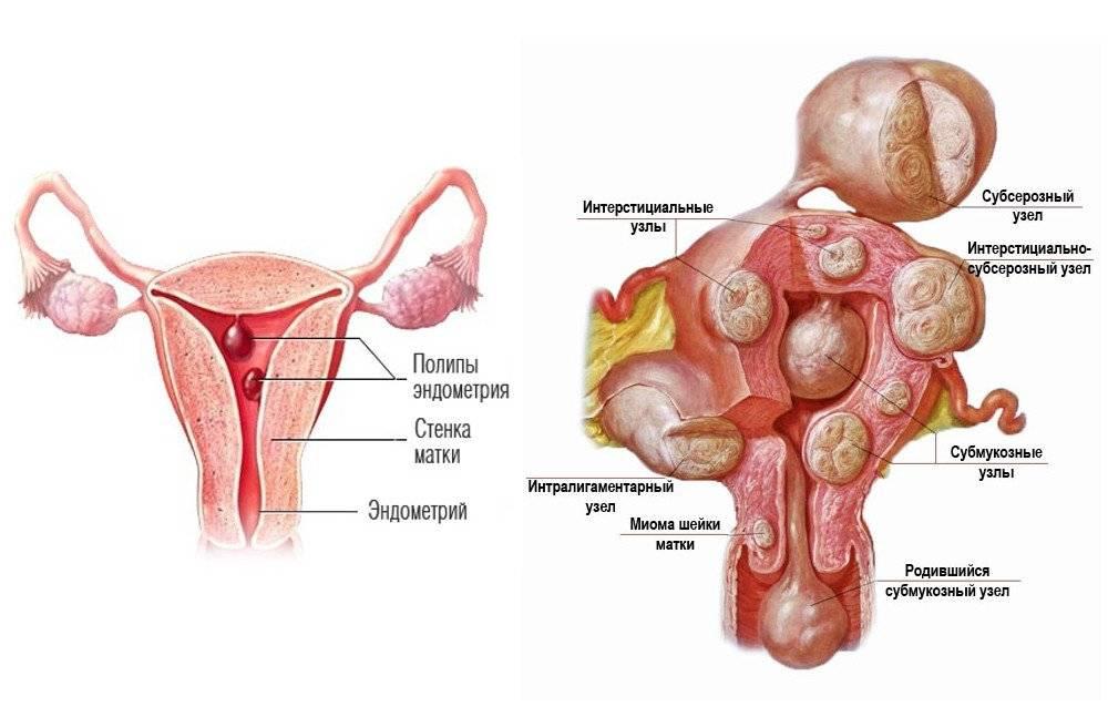 Особенности менструаций при миоме