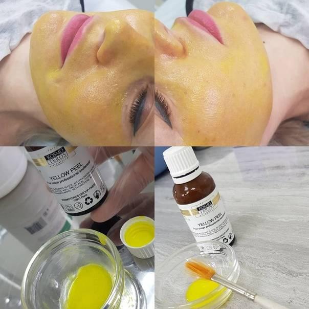 Ретиноевый, или желтый, пилинг для лица — разбираем процедуру от «а» до «я»