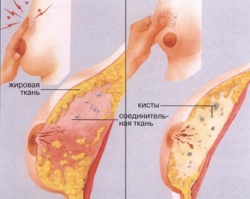 Плоское уплотнение в молочной железе. уплотнение в груди (молочной железе)