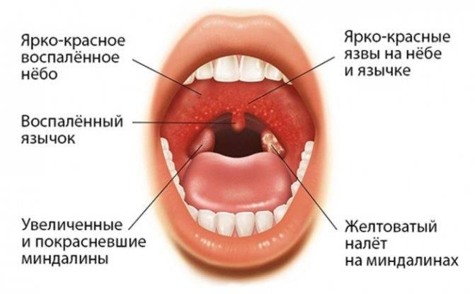Особенности микрофлоры небных миндалин с хроническим тонзиллитом у детей дошкольного возраста