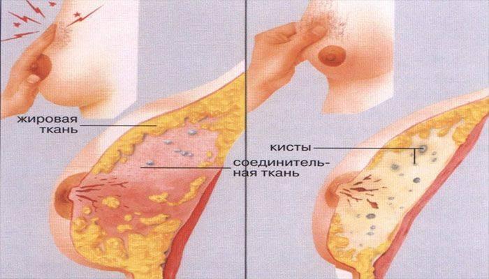 Нормально ли возникновение боли в груди во время месячных