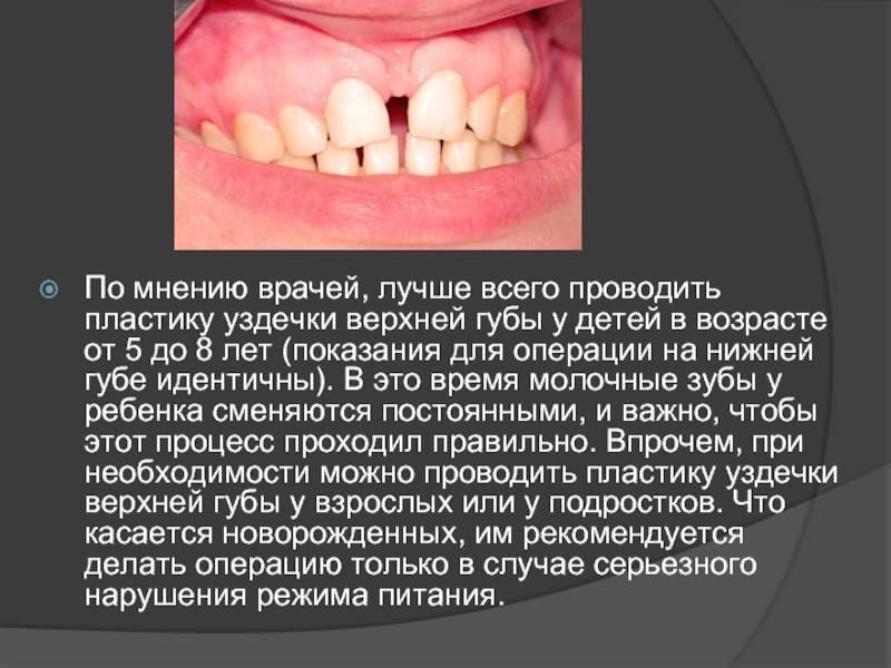 Пластика уздечки нижней и верхней губы. в чем необходимость?