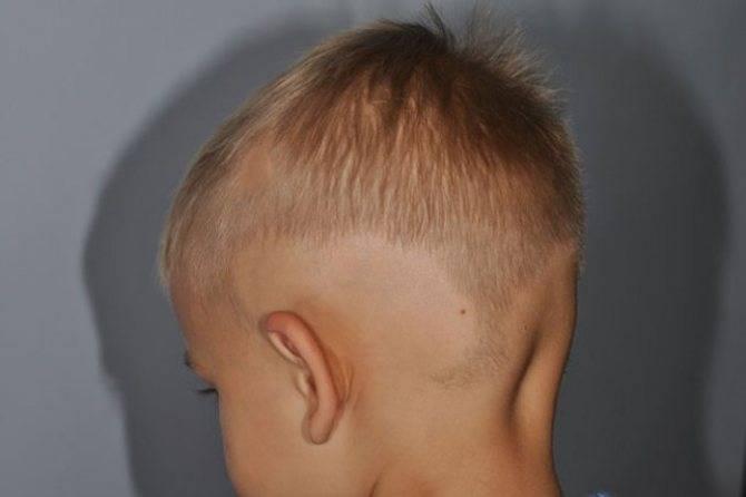 Алопеция у детей: причины и лечение. очаговая и тотальная алопеция у детей