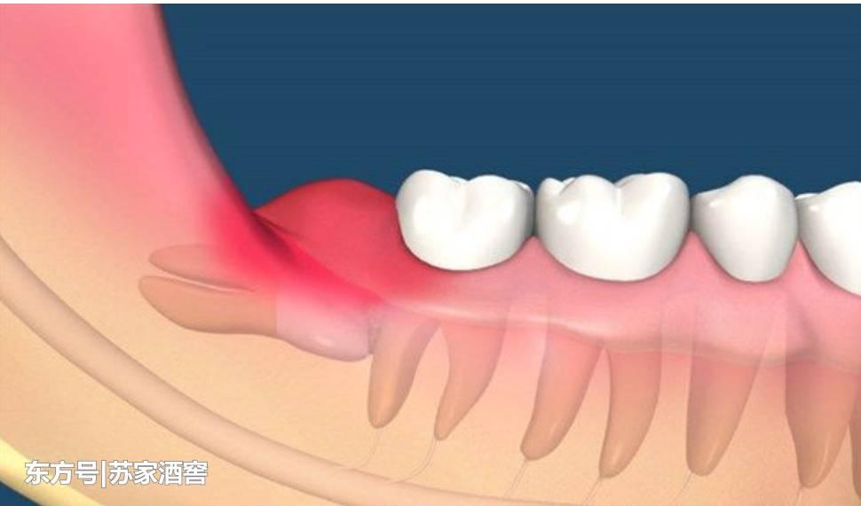 Гной в десне около зуба: почему появляется при надавливании, лечение в стоматологии, чем вытянуть в домашних условиях
