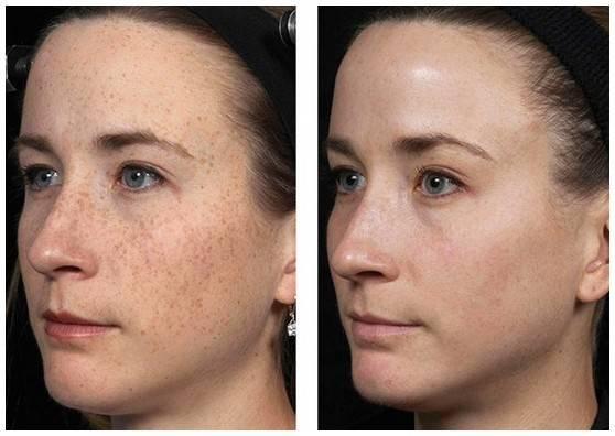 Что такое лазерная шлифовка кожи: подробное описание процедуры