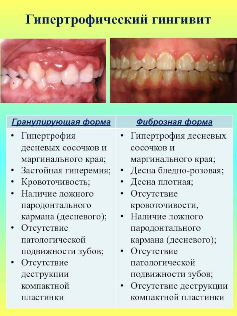 Лекарственные средства для профилактики и лечения гингивита и пародонтита