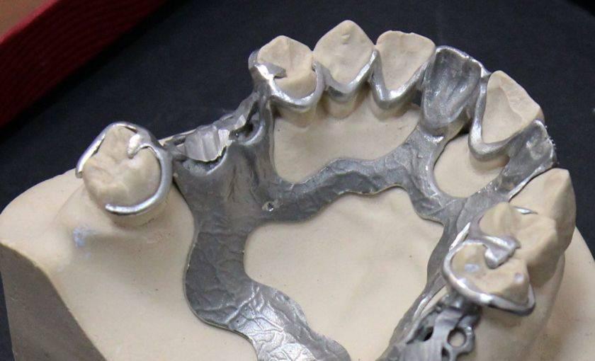Виды кламмеров для зубных протезов и для чего используются?